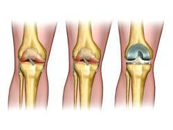 Замена поврежденной хрящевой поверхности сустава хрящ коленного сустава истончен